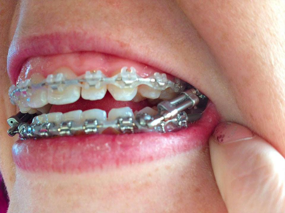 How To Straighten Your Teeth Without Braces Other Options