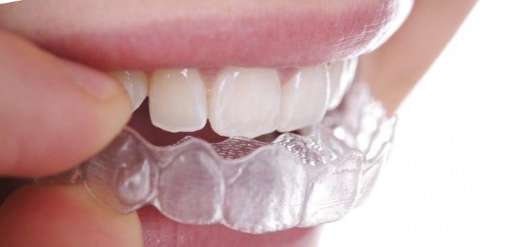 Invisible Aligner Cost in Chandigarh