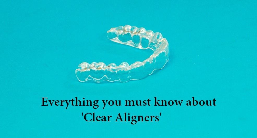 Things To Do Before You Get Braces Archives Aligners