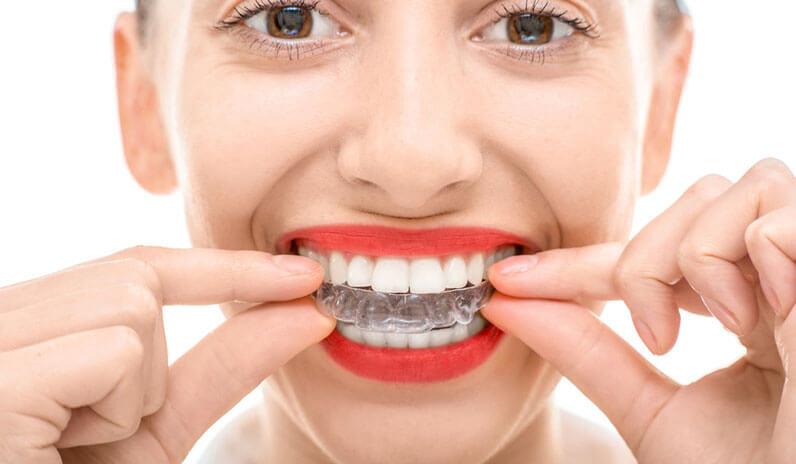 Benefits-of-Having-Straight-Aligned-Teeth