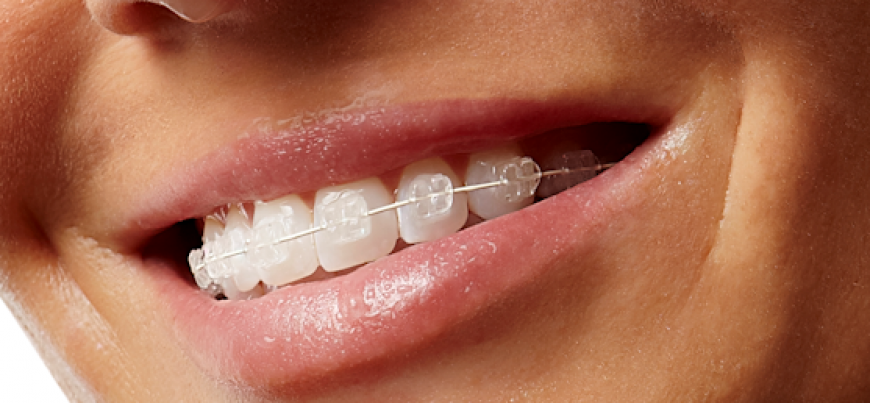 Ceramic_Braces-cost-in-india
