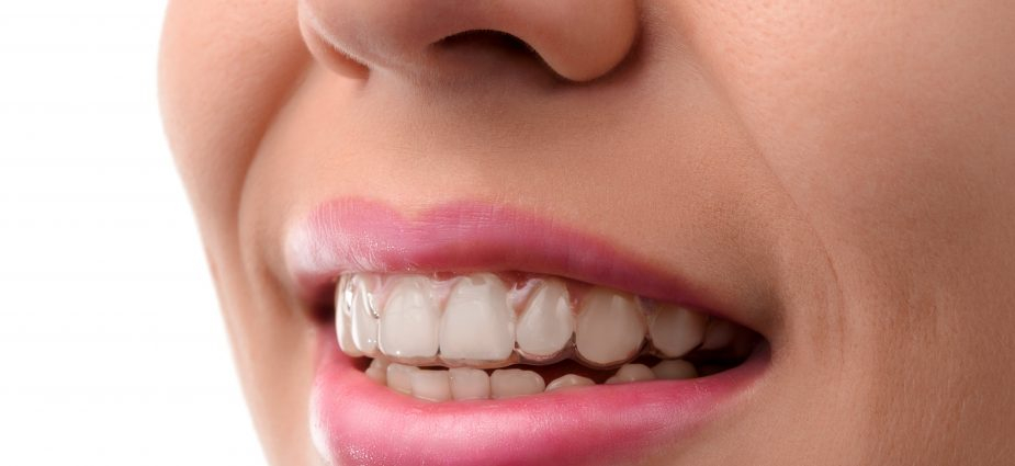 Clear-Aligner-Cost-in-Haryana-Gurgaon-Sonipat