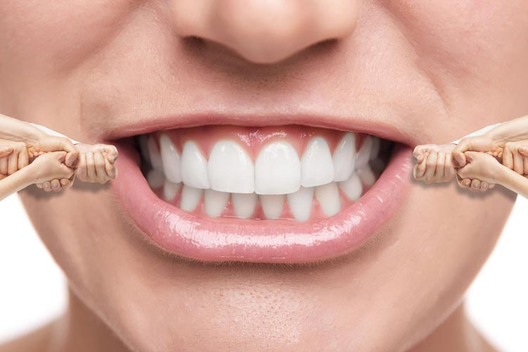 Invisible-Braces-Cost-in-India