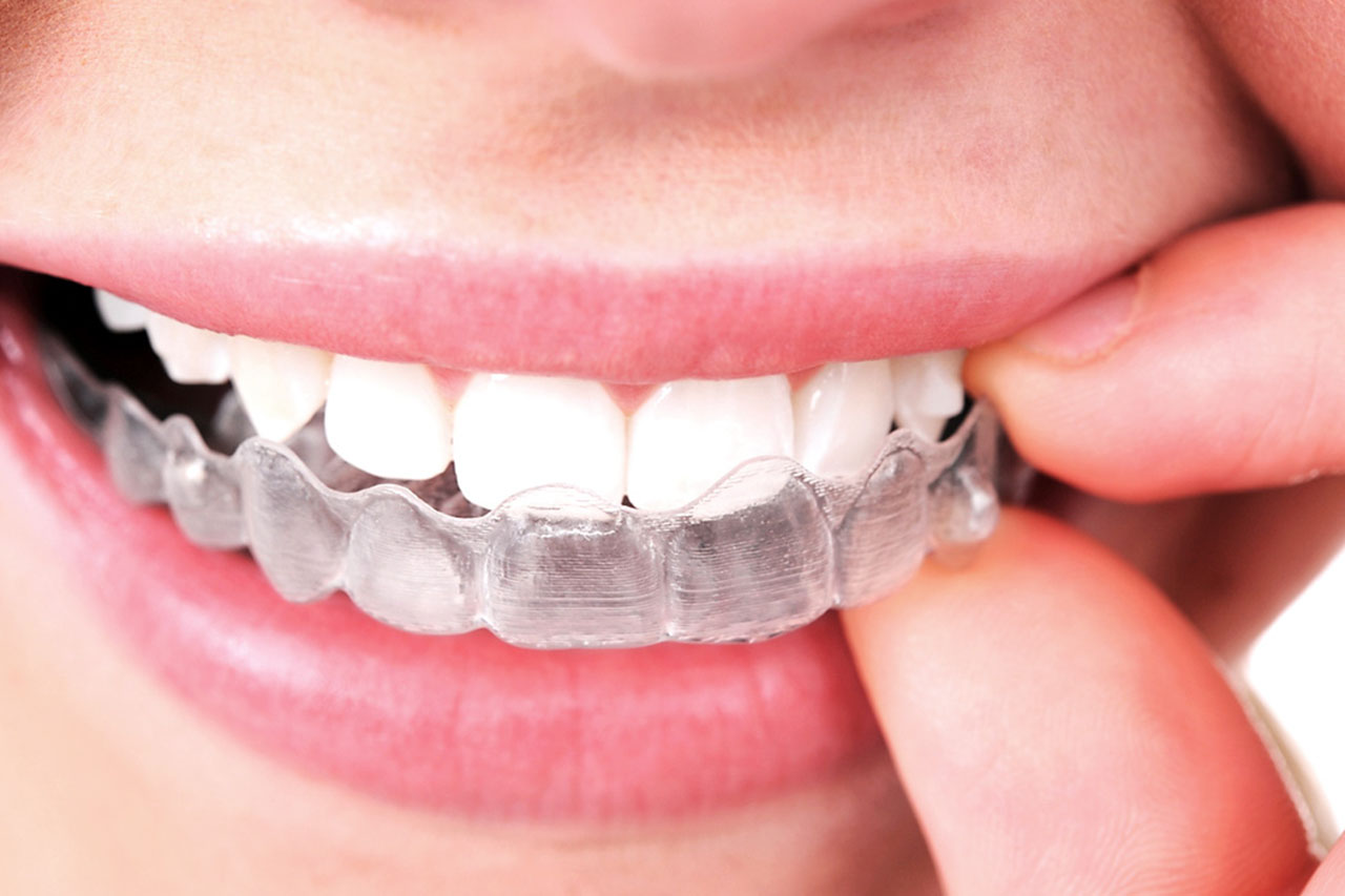 Why-Should-you-Remove-Aligners-While-Eating