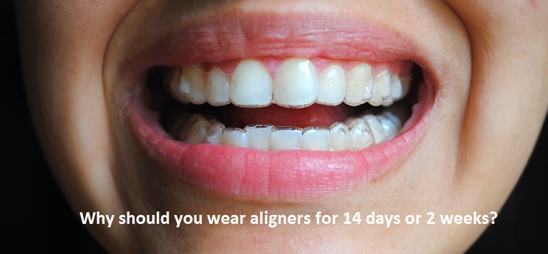Why-Should-you-Wear-Aligners-for-2-weeks