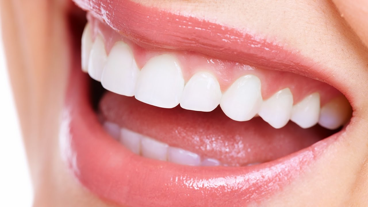 How to Straighten Your Teeth without Braces? What are the Other Options?