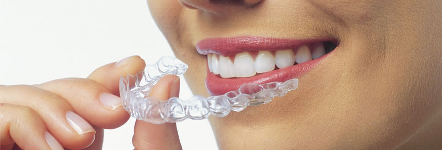 how-aligners-work