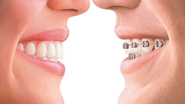 invisalign-vs-braces (1)