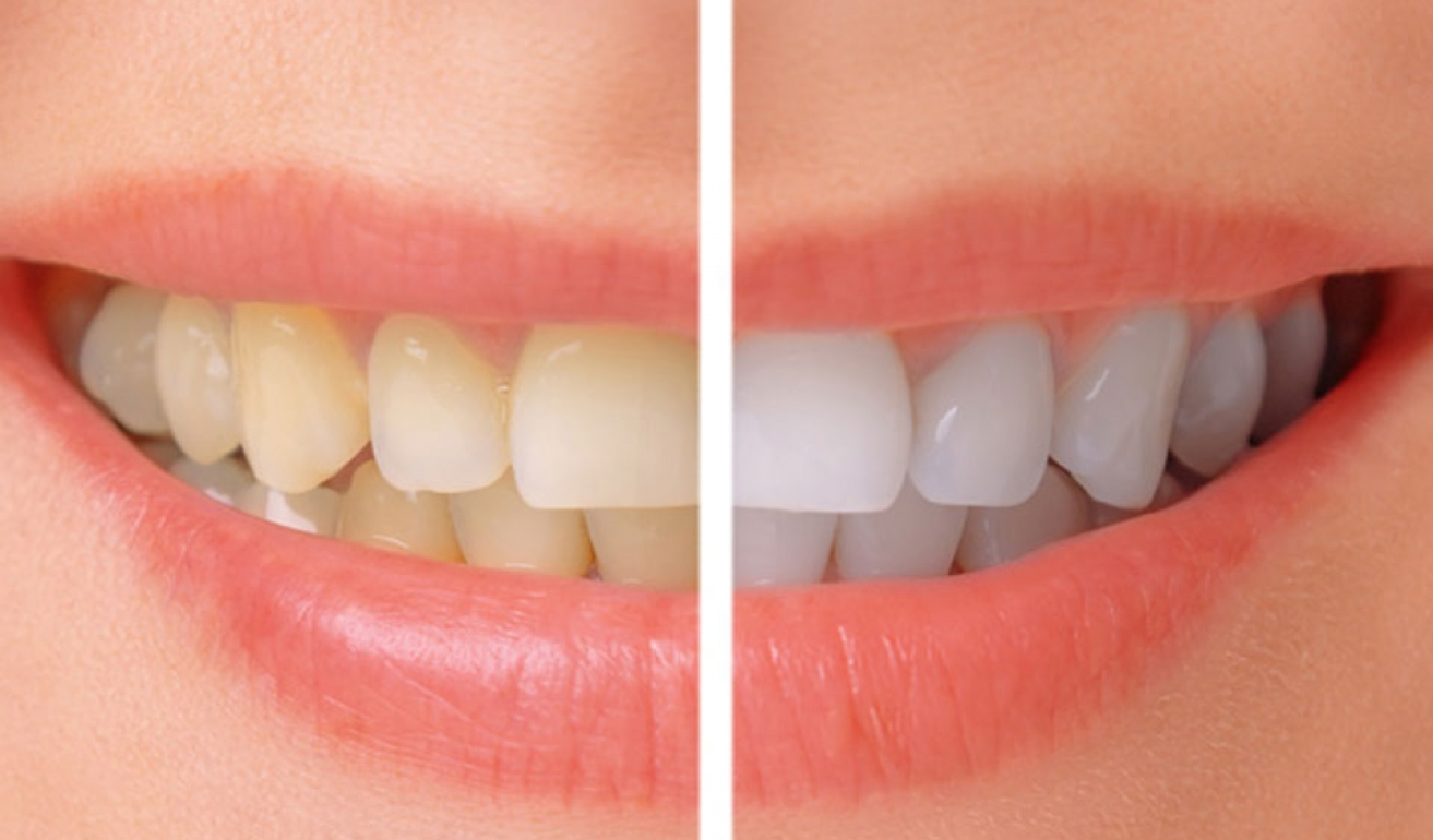teeth-whitening-banner