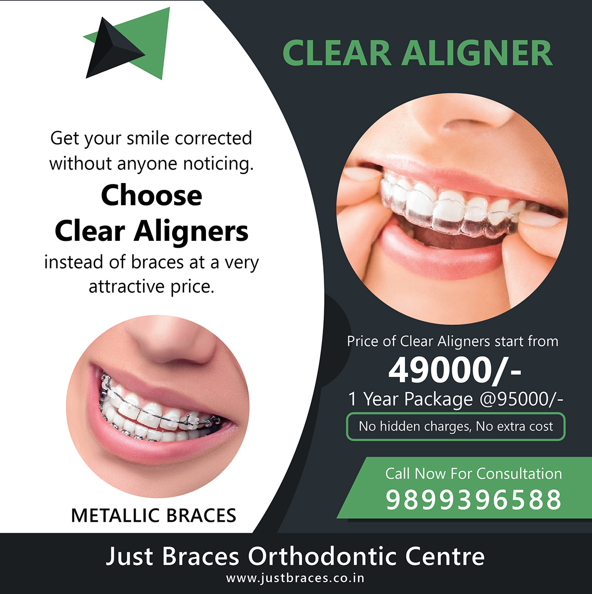 clear aligners cost in ahmedabad archives