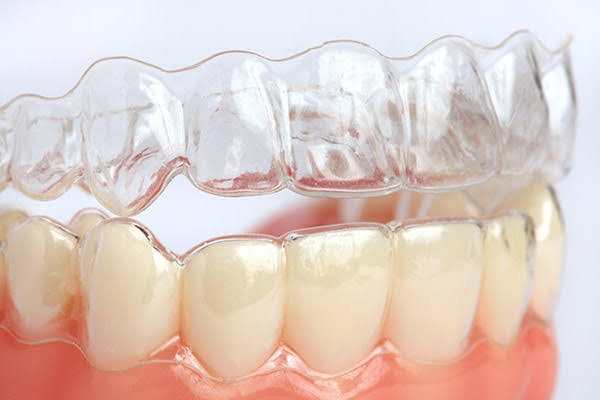 Clear aligners in Delhi