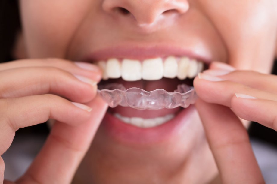Invisalign cost in Los Angeles