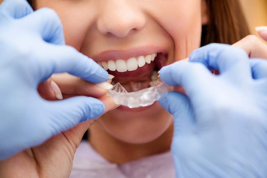 Invisalign cost in Singapore