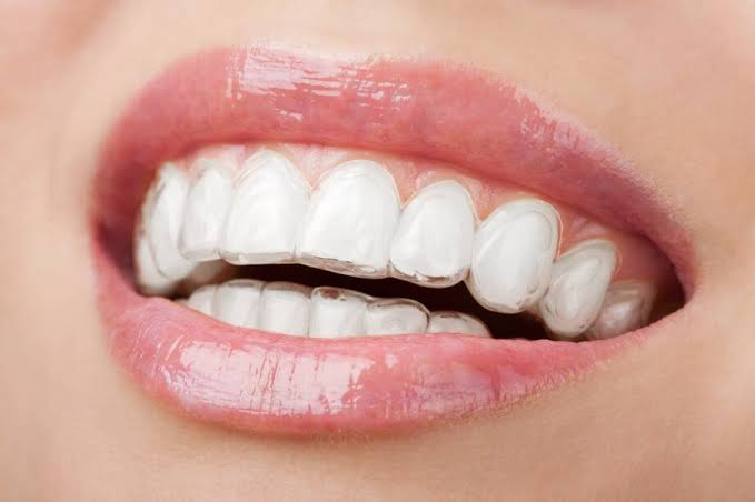 Invisalign Cost in Gurgaon
