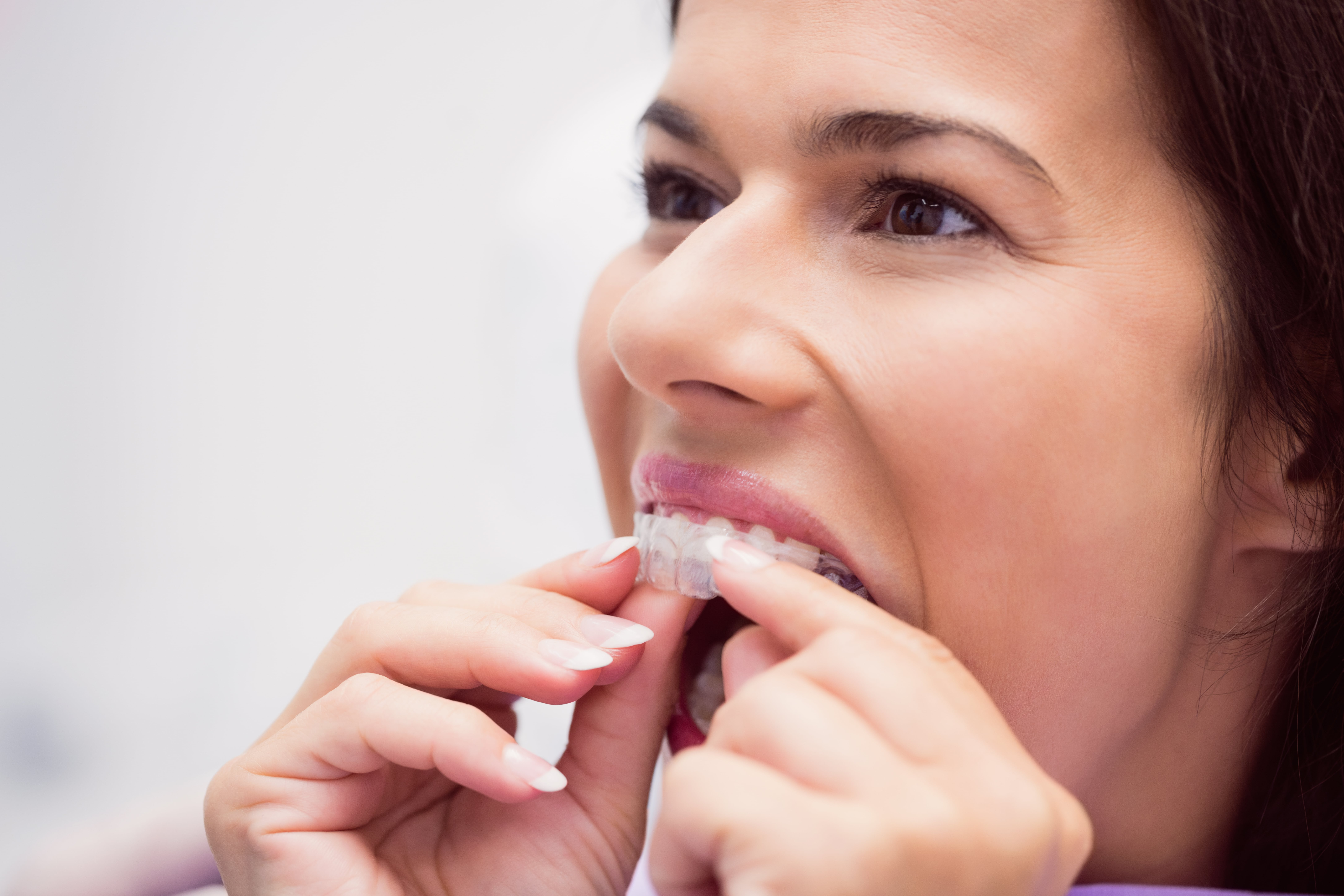 What Type of Braces Work the Fastest